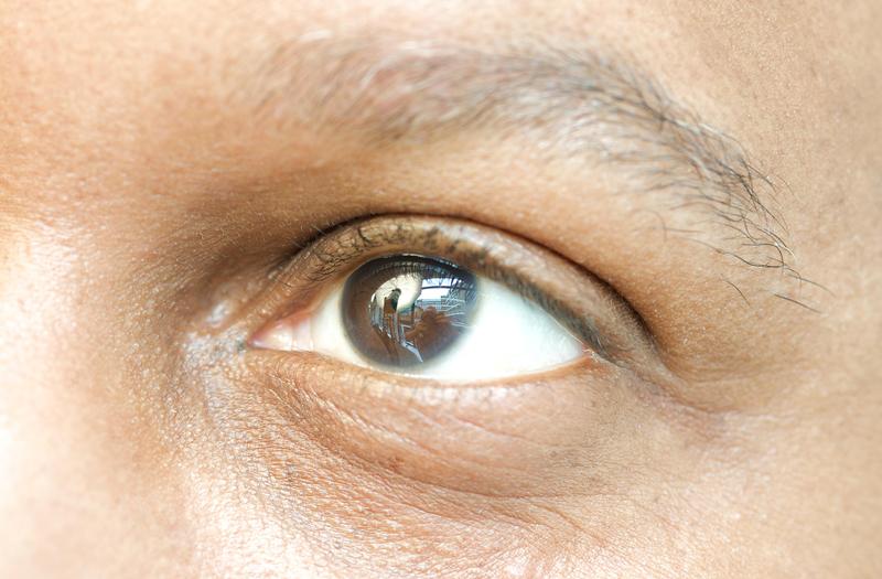 MECS eye